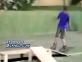 Skater slams face into ground