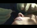 Rhinoplasty video live demonstrations