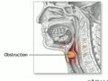 Cartilage Procedures